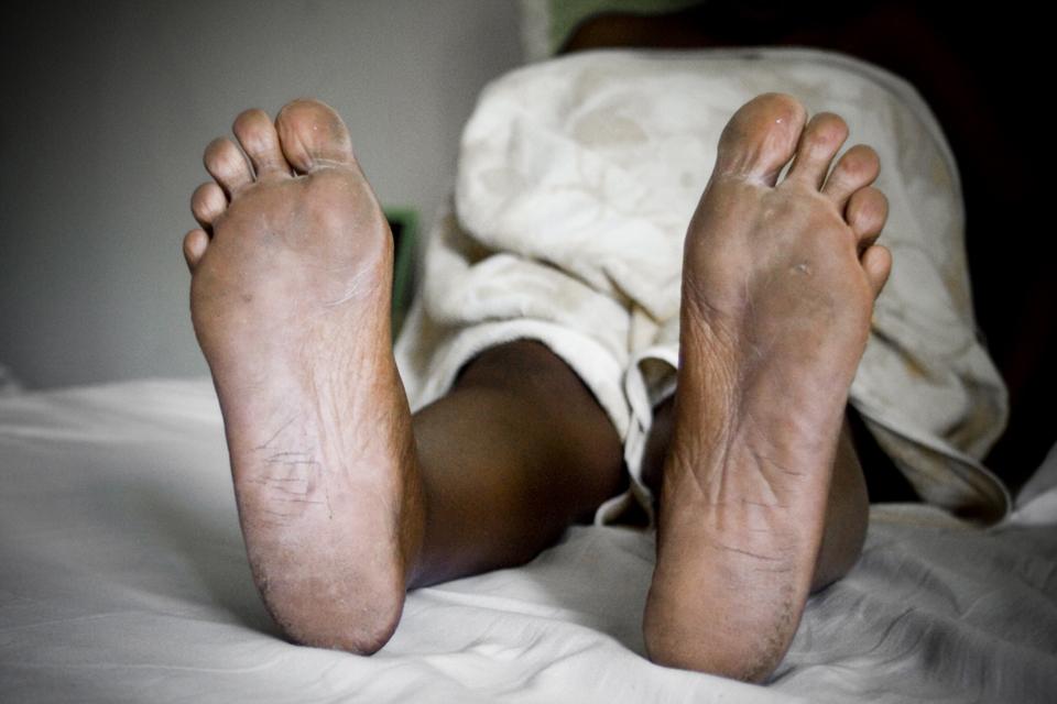 solution trasnpiration pieds sales hygiène