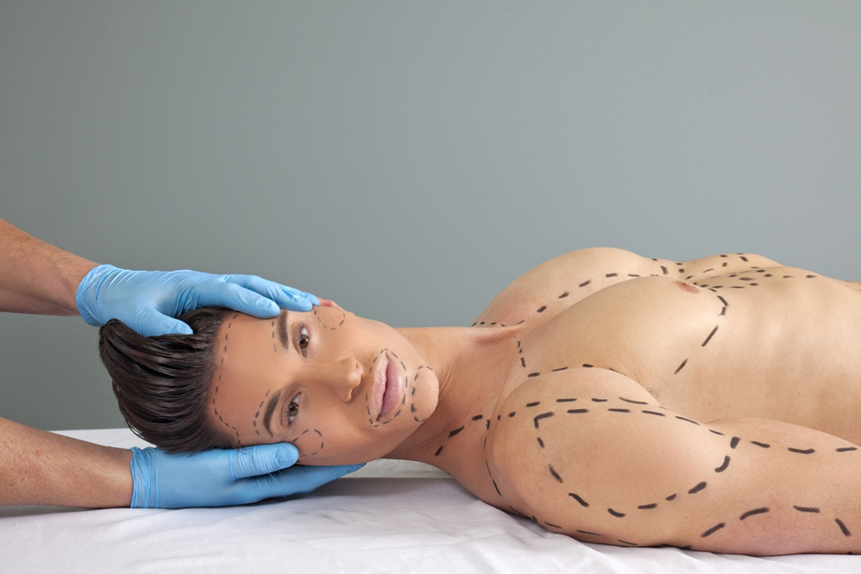 Implants Muscles Chirurgie Esthetique