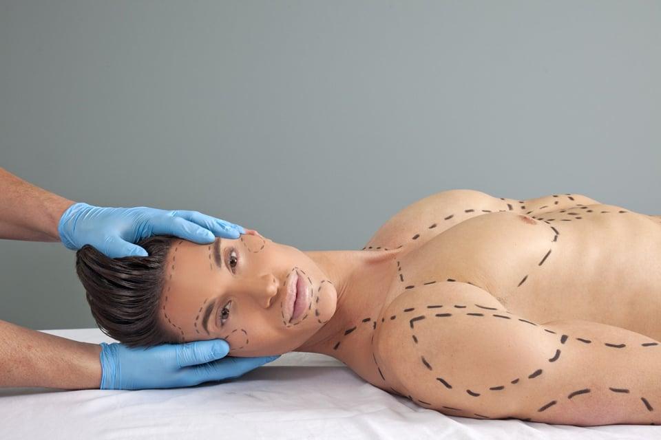 Implants Muscles Chirurgie Esthetique
