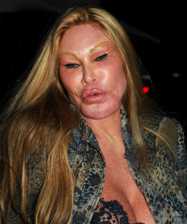 Lady Who Looks Like A Cat Plastic Surgery